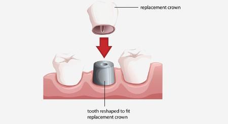 השתלות שיניים ביום אחד בהעמסה מיידית